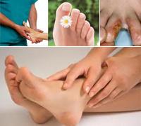 Грибок на ногах - лечение грибка на ногах, грибка стопы, грибка между пальцами за 3 дня с использованием Органического серебра